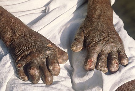 NaTang leprosy